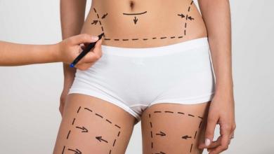 Liposuction Operasyonu Sonrası Kilo Verme Yolları